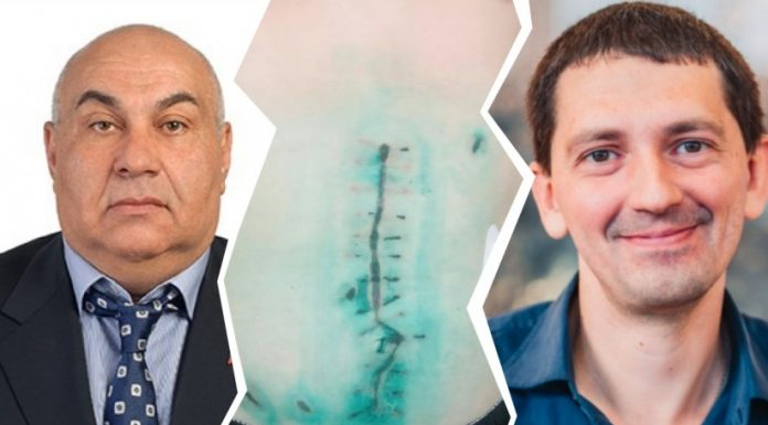 Investigators filed a case at Novosibirsk, which accused the MP and his son in a knife attack