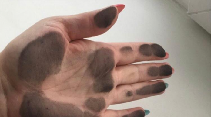 """""""It is impossible to describe how sick that is, as if gulerce"""": residents of the Novosibirsk region suffer from the unknown black dust"""
