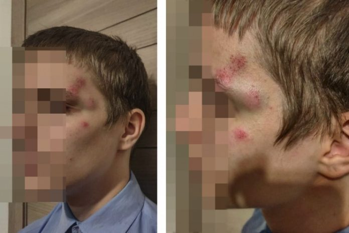 Service check in the interior Ministry: the police was not sent for examination to the man who beat the son of human rights activist