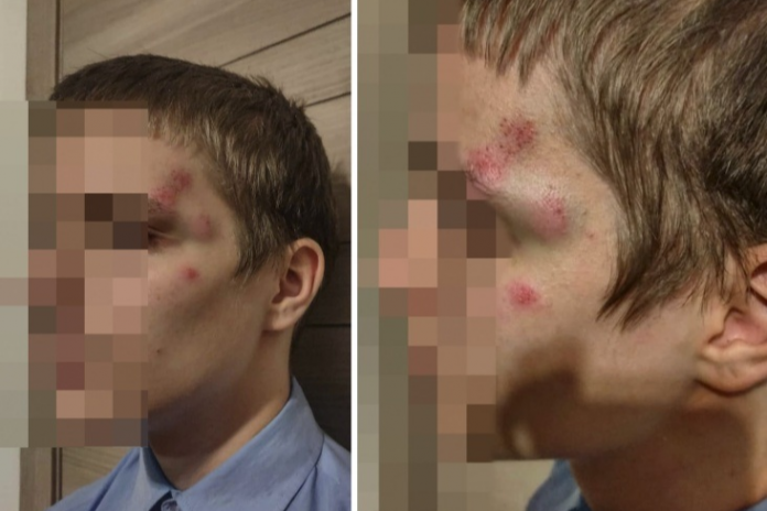 The police again refused to Institute criminal proceedings for beating of 14-year-old son Novosibirsk public